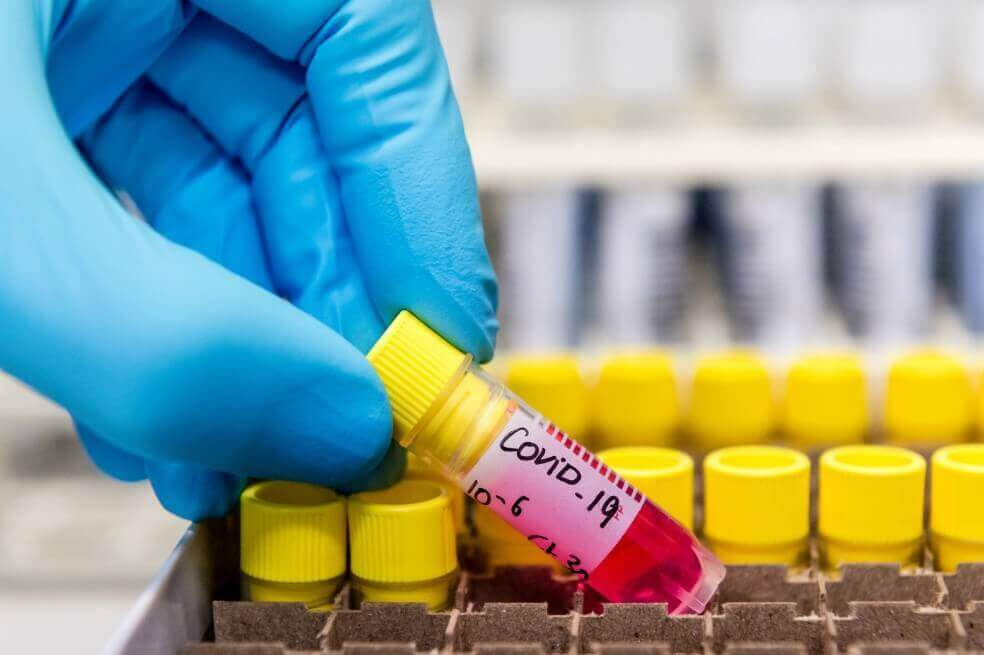 Crean prueba para COVID-19 a bajo costo
